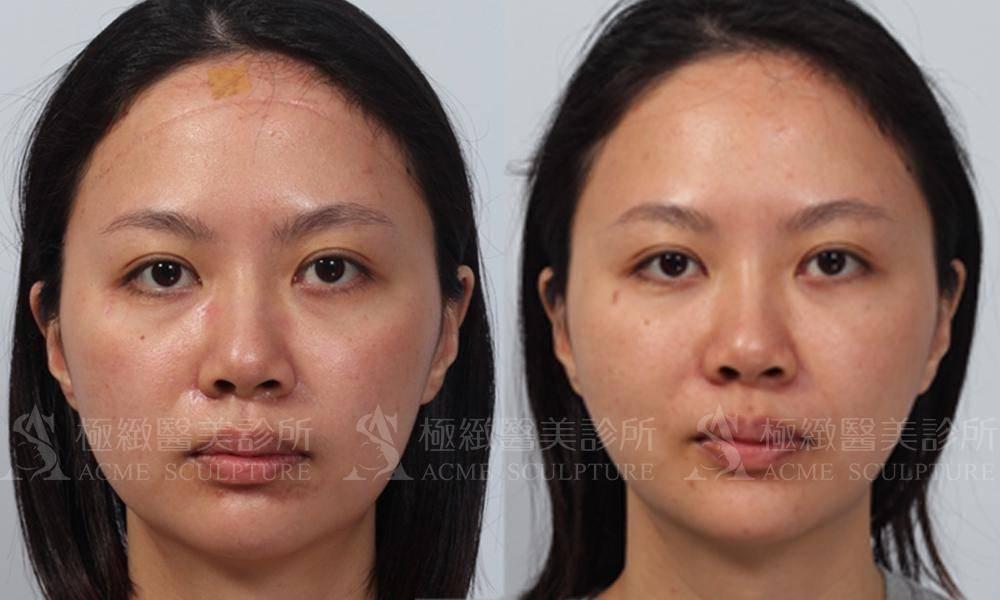 極緻醫美眼袋無痕眼袋眼袋內開淚溝脂肪移植