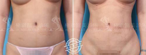 極緻醫美vaser威塑體雕抽脂背部抽脂腹部抽脂腰腹抽脂蝴蝶袖