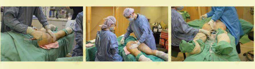 極緻醫美,醫美減肥,醫美抽脂,抽脂手術,抽脂分享,抽脂案例,抽脂推薦,抽脂醫師,台北醫美,醫美推薦, 醫美整形